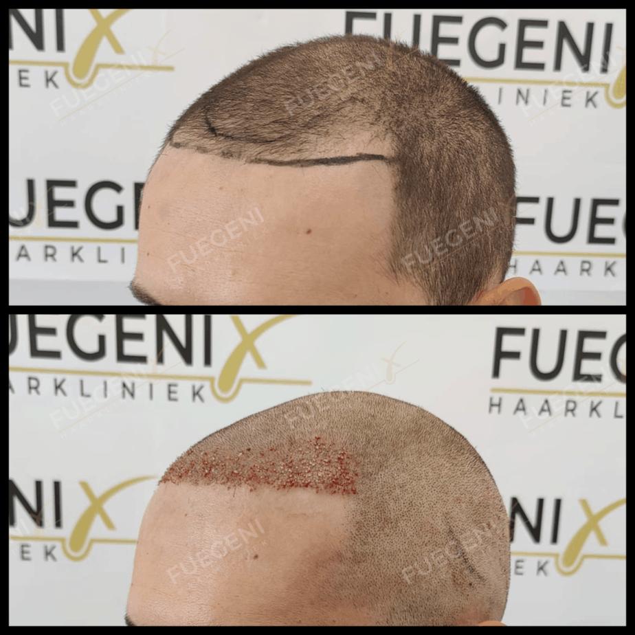 Een Haartransplantatie Bij Kort Haar