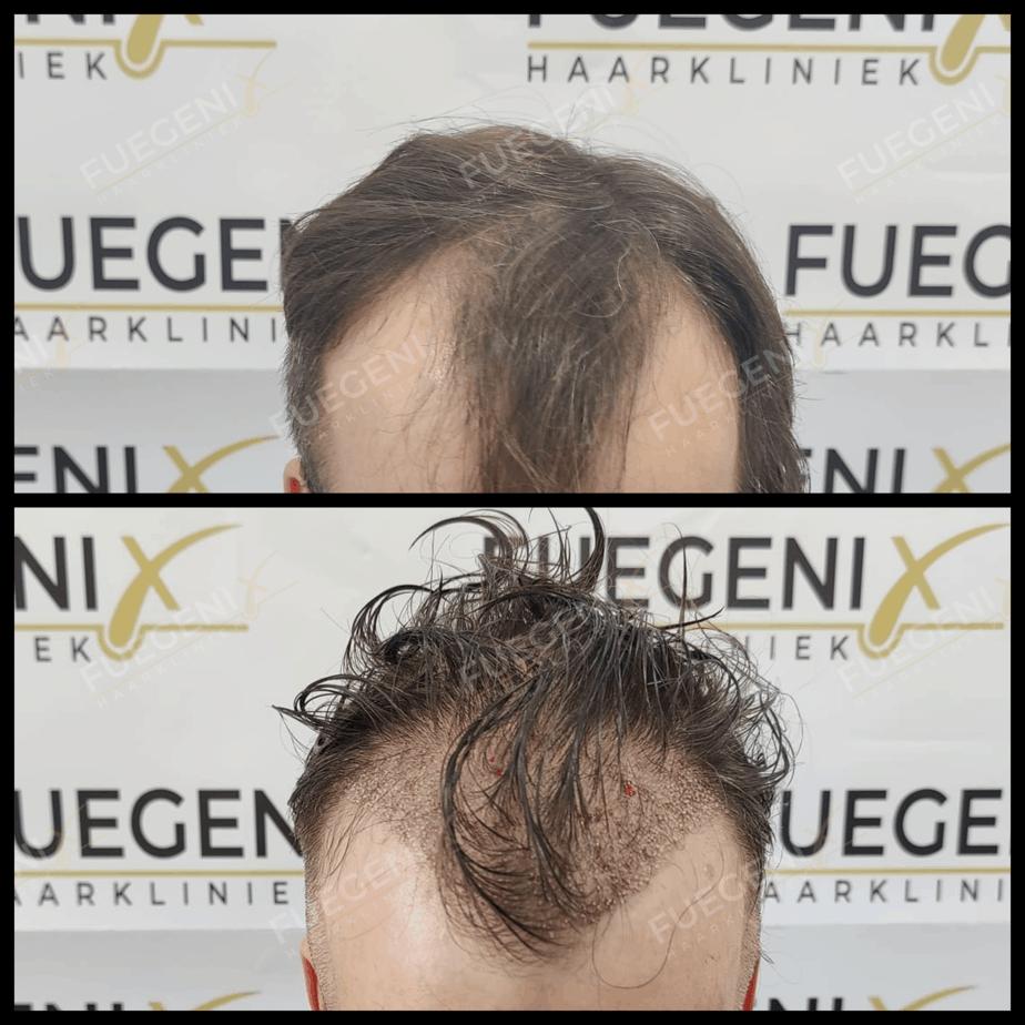 Haartransplantatie Zonder Scheren Resultaat 3