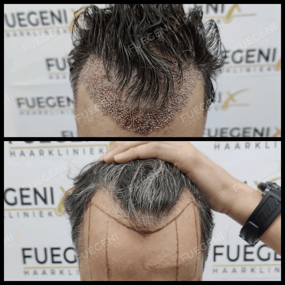 Haartransplantatie Zonder Scheren Resultaat