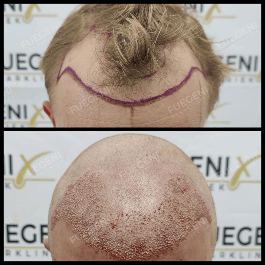 Sapphire Haartransplantatie Resultaat
