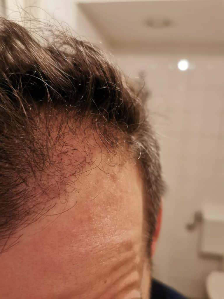 Sapphire Haartransplantatie Resultaat Na 2 Maanden