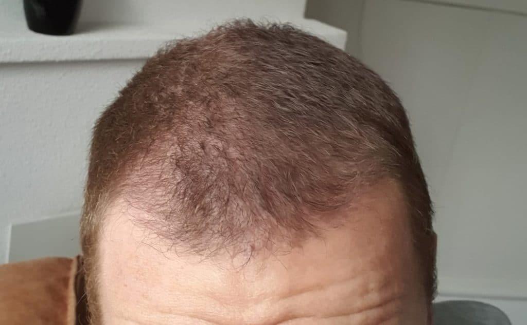 Sapphire Haartransplantatie Resultaat Na 2.5 Maanden
