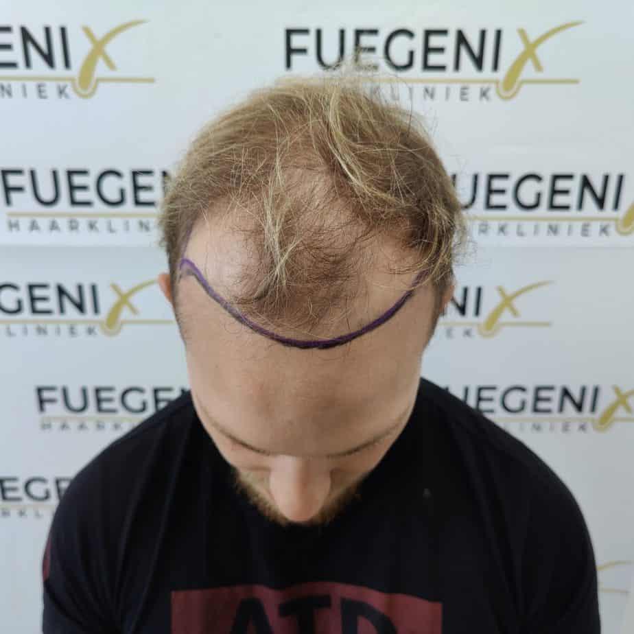 Guust Strevelaar Haartransplantatie Dag 1 - Bovenkant