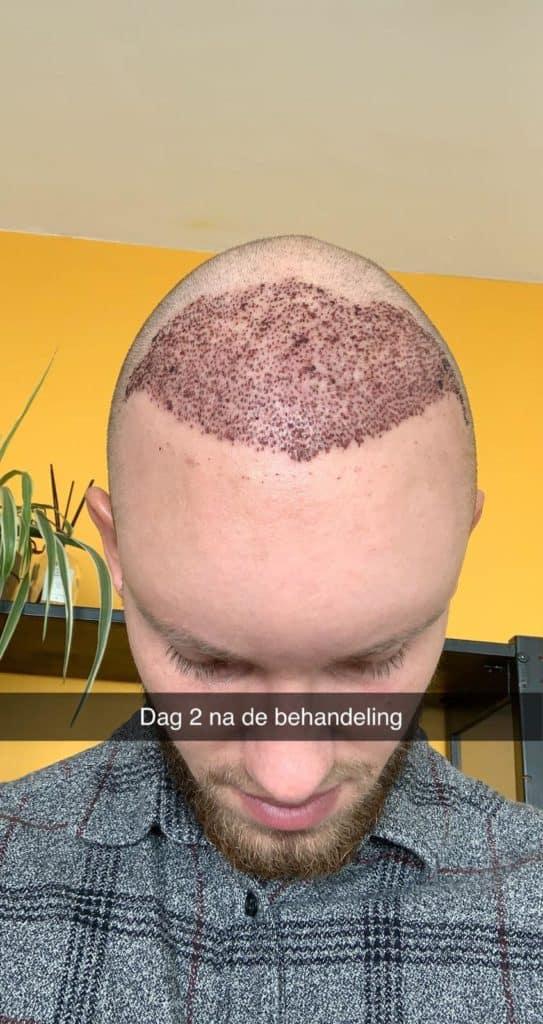 Guust Strevelaar Haartransplantatie Dag 3