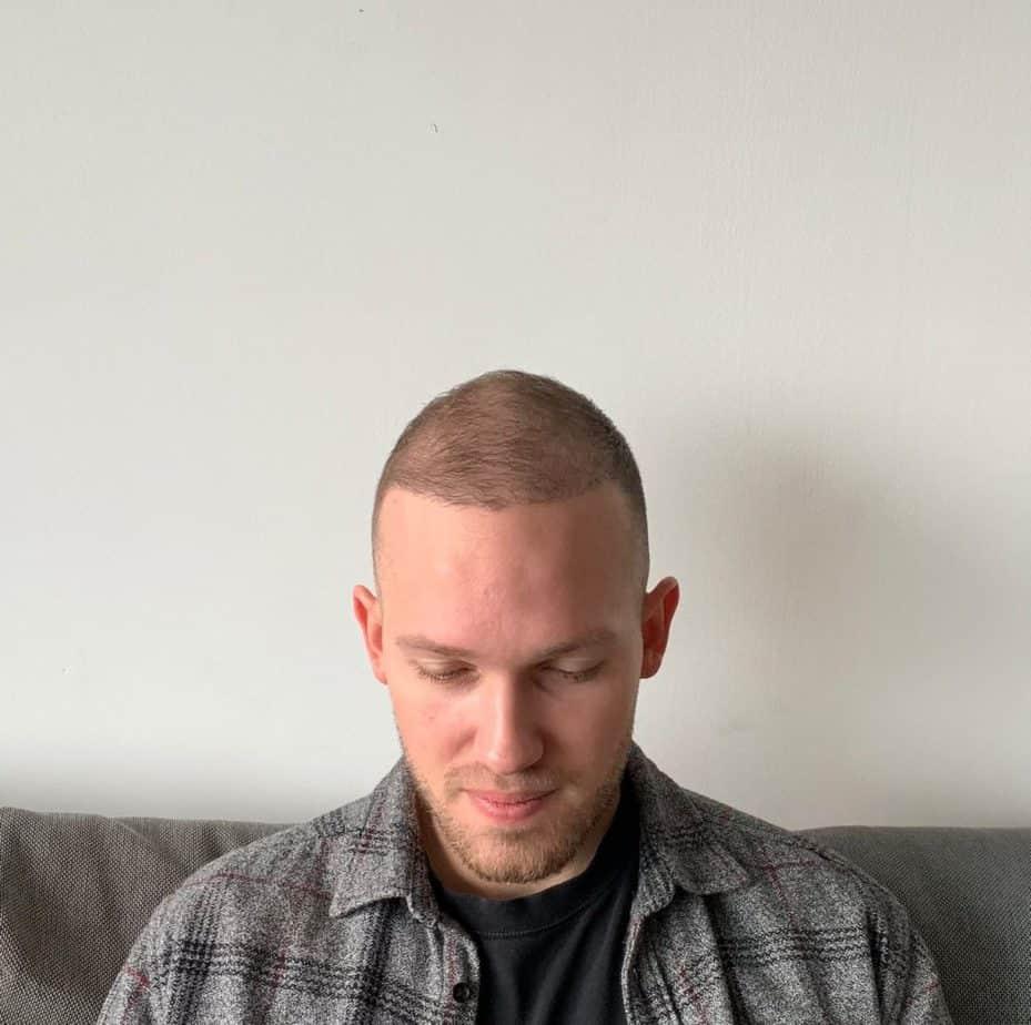 Guust Strevelaar Haartransplantatie Maand 3