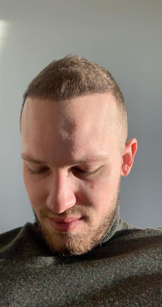 Guust Strevelaar Haartransplantatie Maand 4