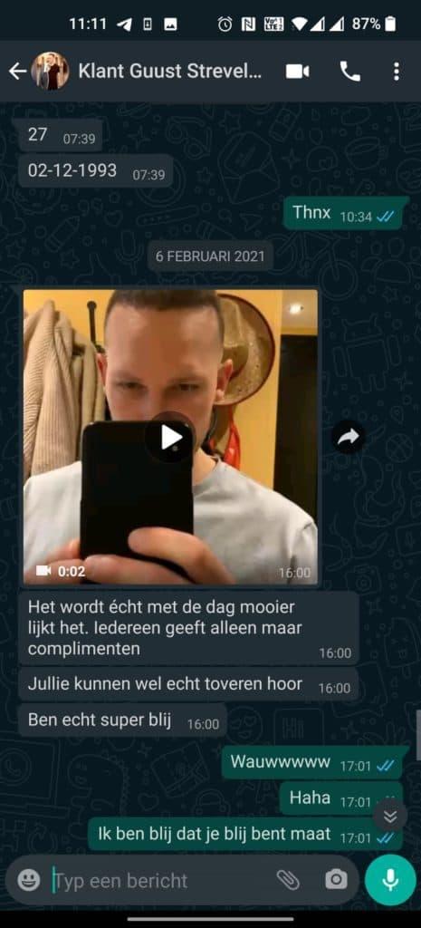 Guust Strevelaar Haartransplantatie Maand 4,5 WhatsApp
