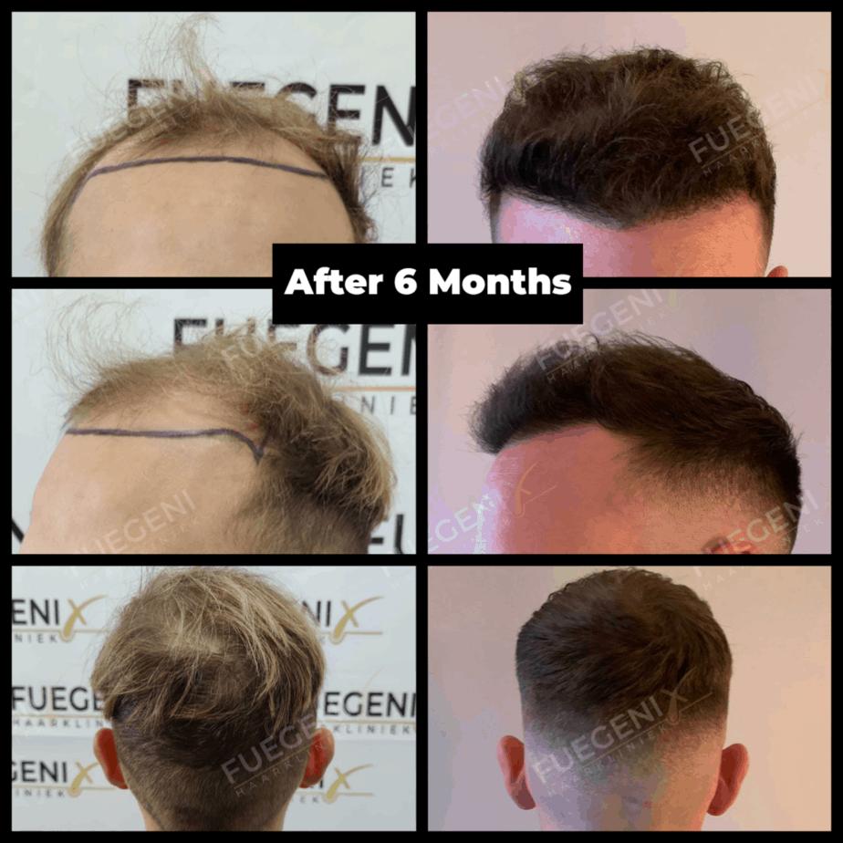 Guust Strevelaar Haartransplantatie Maand 6